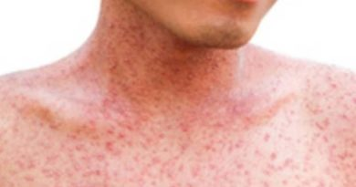 Measles cases reach 22 in Southeast Michigan